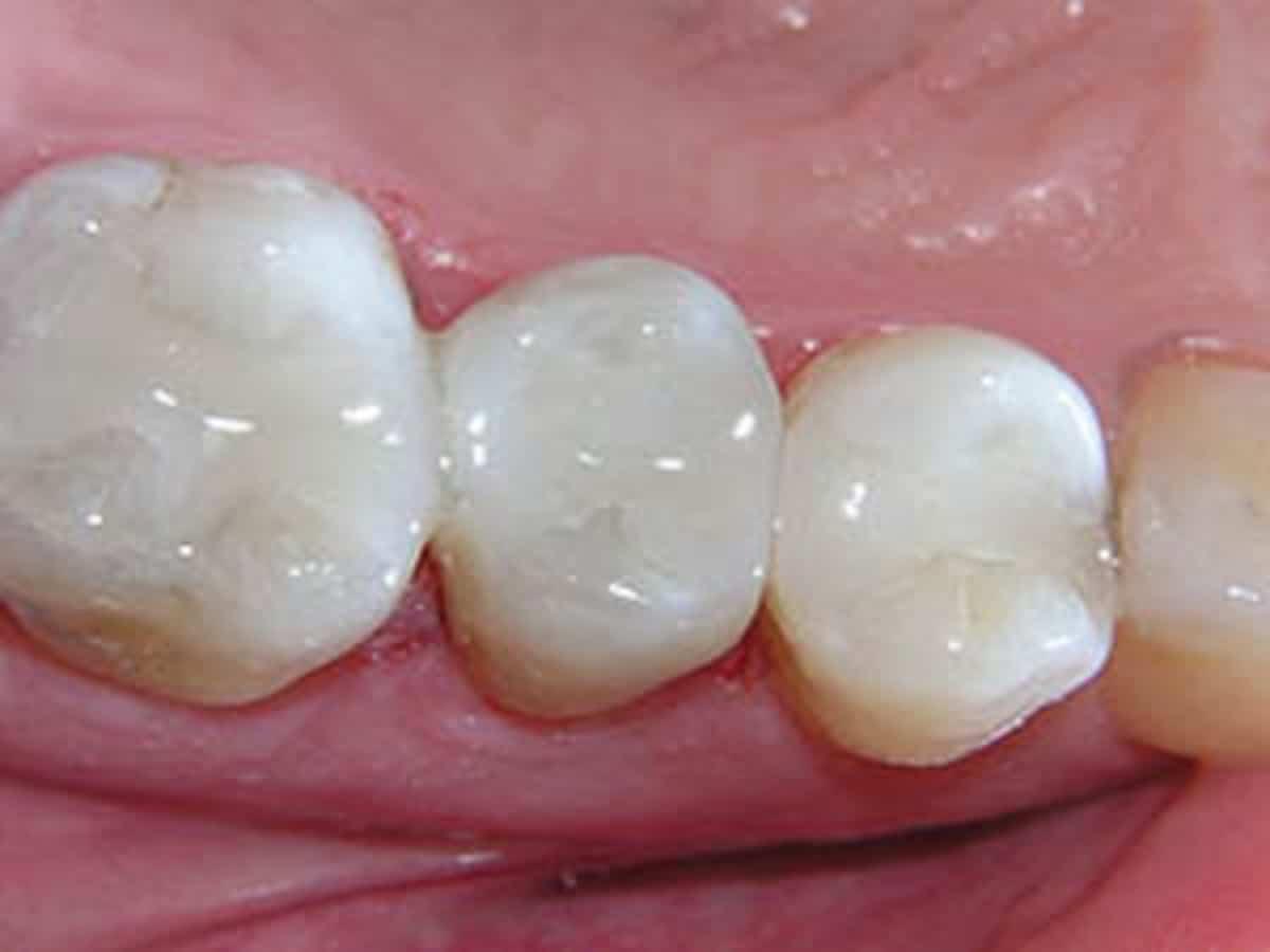 Mercury-free dental fillings