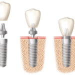 Top four habits to break when getting dental implants in Dubai