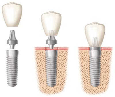 Top four habits to break when getting dental implants in Dubai