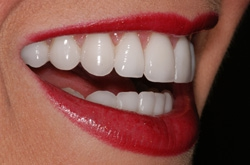 Correction of various Dental Problems through Porcelain Veneer Placements