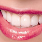 Use Dental Implants to Improve Yourself