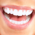 Get Dental Implants in Dubai
