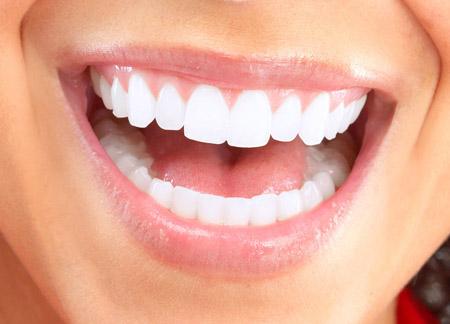 Get Dental Implants in Dubai