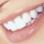 The Dental Implants in Dubai