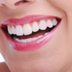 Dental Implants are a great solution
