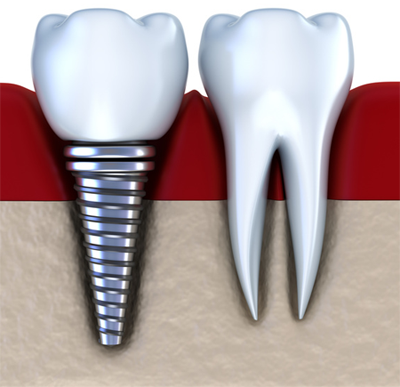 Dental Implants Have Transformed Lives