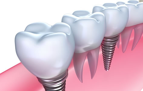 Falsehood About Dental Implants