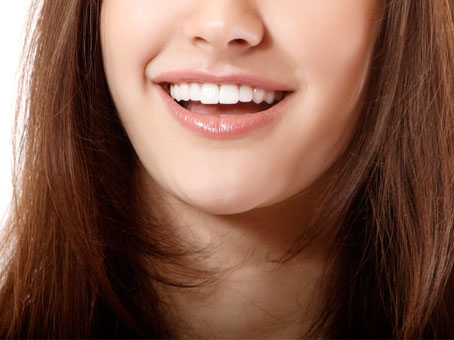 Achieve a Flawless Smile with Veneers