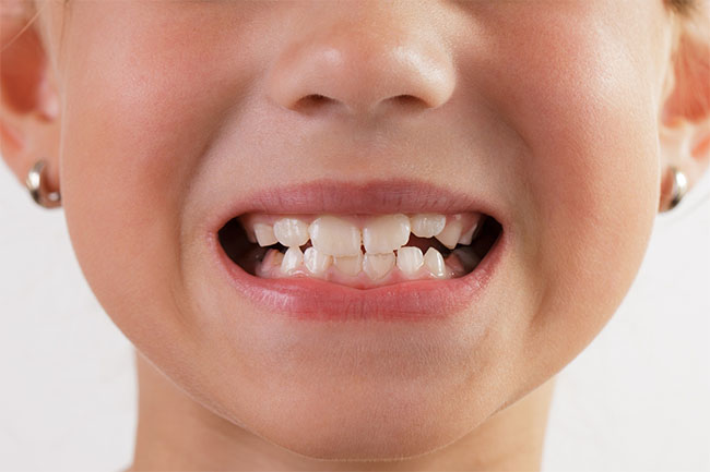 Taking Care Of Your Children's Teeth