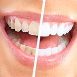 Teeth Whitening To Make You The Center Of Attention