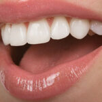A Brief Examination of Dental Implants