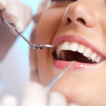 5 Reasons Why You Should Get Dental Implants!