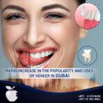 Rapid Increase in the Popularity and Uses of Veneer in Dubai