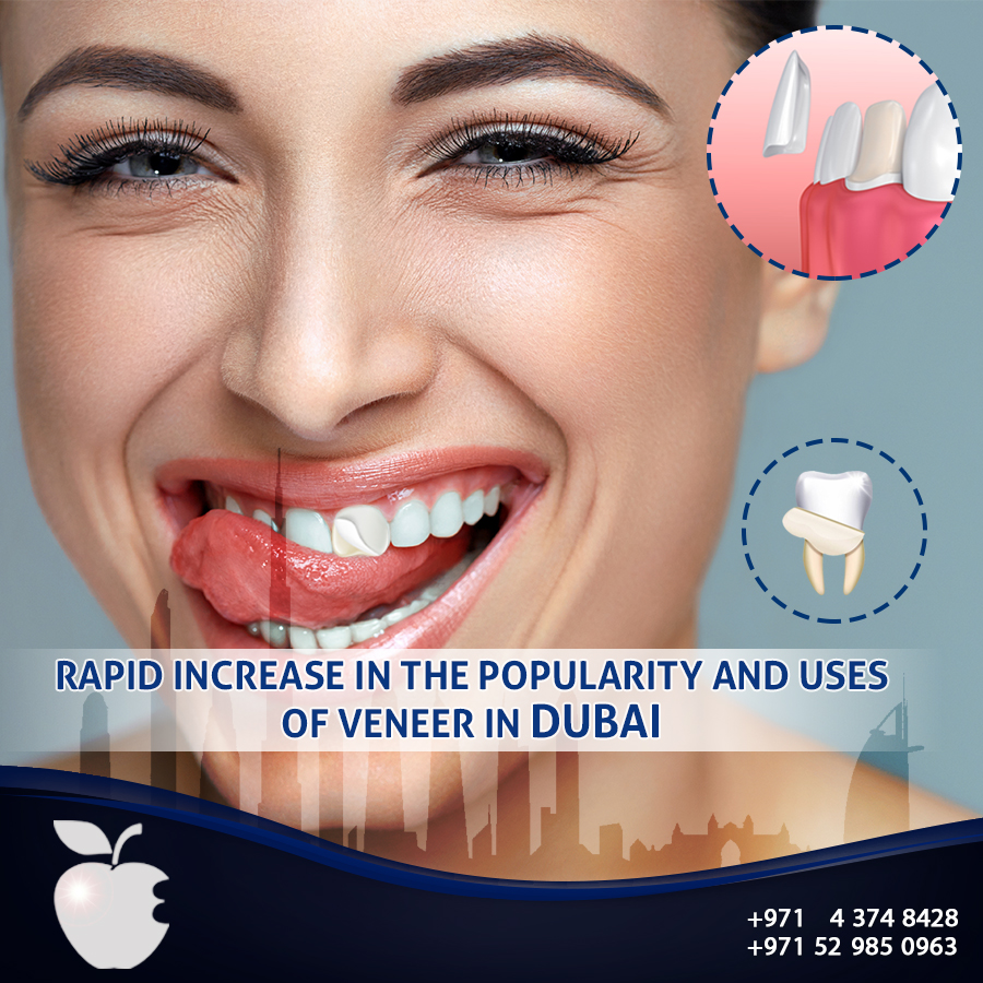 Rapid Increase in the Popularity and Uses of Veneer in Dubai