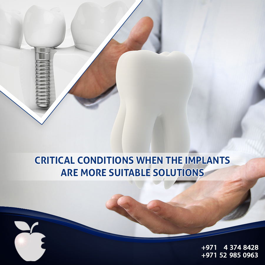 Critical Conditions When the Implants are more Suitable Solutions