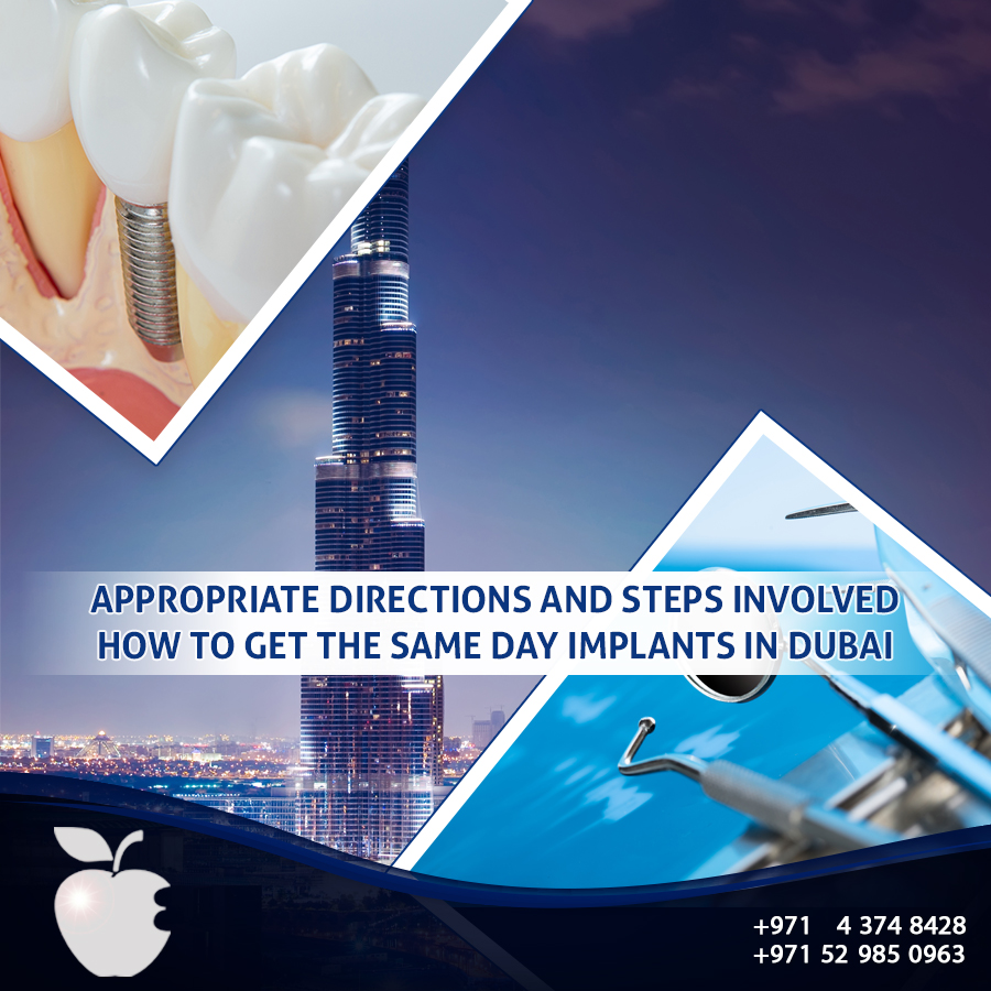 Appropriate Directions and Steps Involved How to Get the Same Day Implants in Dubai
