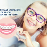 Importance and Usefulness of Braces to Relocate the Teeth