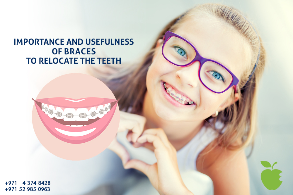 (English) Importance and Usefulness of Braces to Relocate the Teeth