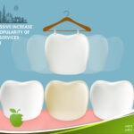 An Excessive Increase in the Popularity of Veneer Services in Dubai