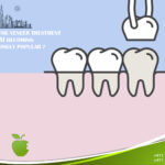 Why Is the Veneer Treatment in Dubai Becoming Increasingly Popular?