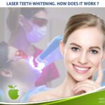 Laser Teeth Whitening. How Does It Work ?