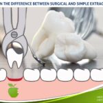 Learn the difference between surgical and simple Extraction
