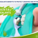 Dental Sealants To Protect Grooved And pitted Areas