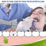 How To Care Of Your Teeth After Filling?