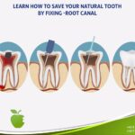 learn how to save your natural tooth by Fixing-Root-Canal