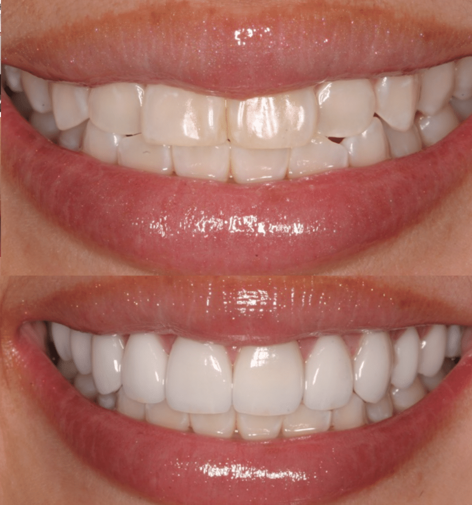Veneers In Dubai