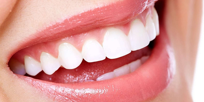 5 Ways to Keep Your Teeth White at Your Home