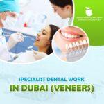 Specialist dental work in Dubai (veneers)