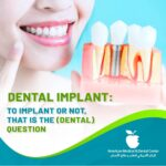 Dental implant : To implant or not, that is the (dental) question
