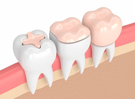 Dental-Crowns32